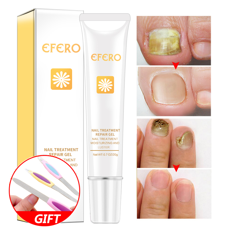 EFERO Fungal Nail Treatment Feet Care Essence Nail Foot Whitening Toe Nail Fungus Removal Gel Health Beauty Accessories