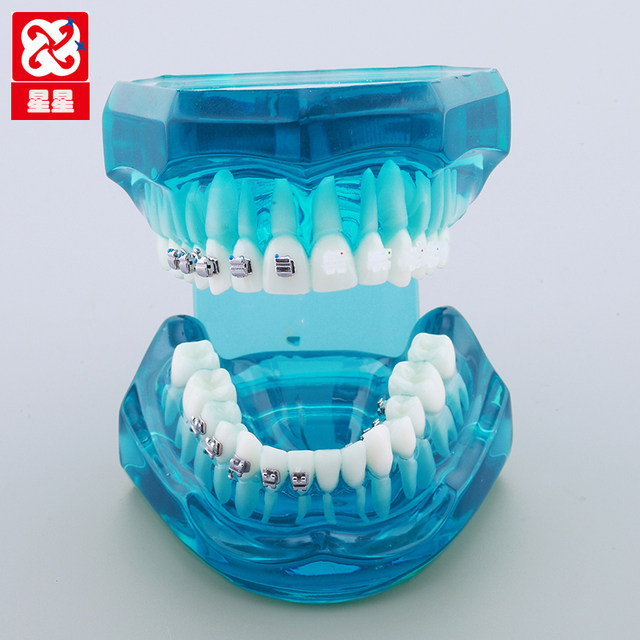 Online Shop Orthodontic appliance model four kinds of brackets ...