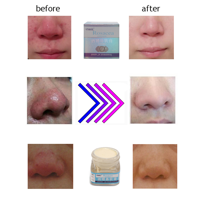 Have Rosacea facial cream pity, that