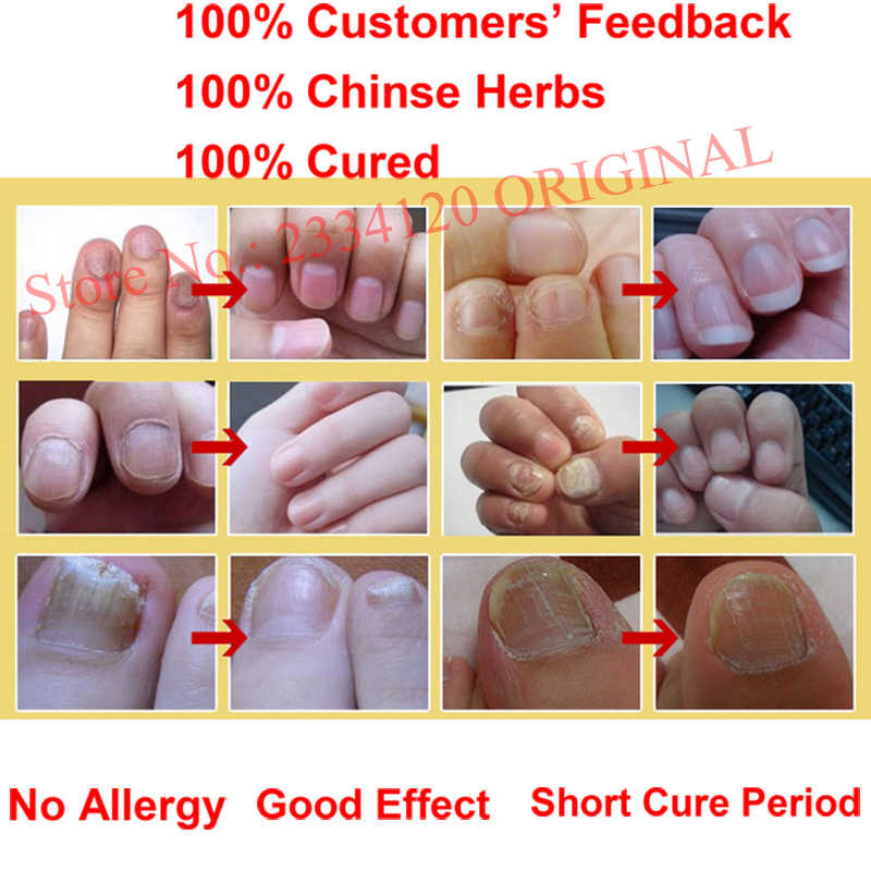 Detail Feedback Questions about Chinese Medicine Herbs Toe Nail ...