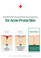 SOME BY MI AHA BHA PHA 30 Days Miracle Acne Clear Foam 100ml Facial Cleanser Remove Scar Acne Pimple Treatment Face Cleansing 3