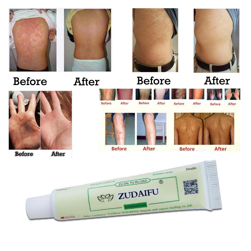 Eczema Psoriasis Treatment Beli Murah Eczema Psoriasis: Zudaifu Skin Care Cream Skin Psoriasis Cream Dermatitis