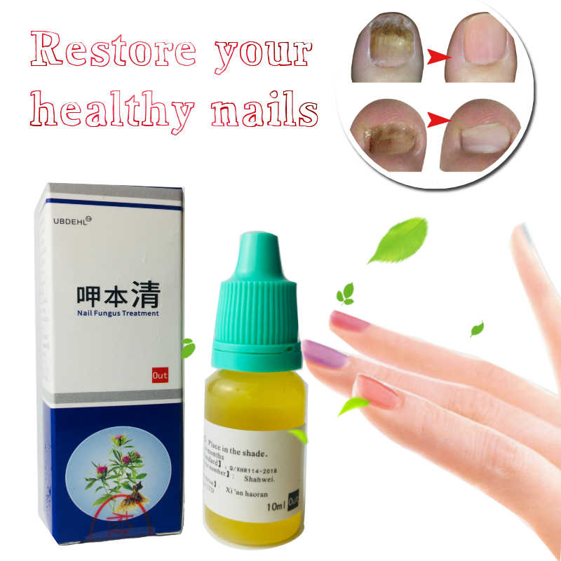 Detail Feedback Questions about 1/2/3pcs Nail Fungus Treatment ...