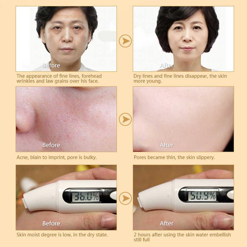 12 Ml Siput Bergizi Perbaikan Berkonsentrasi Lift Pelembab Kulit Shrink Pori Lift Mencerahkan Kulit Anti Aging Anti-Wrinkle Whitening