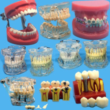 Различные модели зубных зубов используются для обучения и больничных стоматологов материал