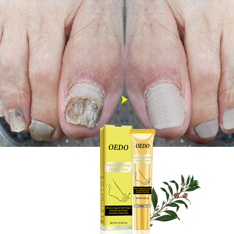 OEDO Ginseng Nail Treatments Cream Remove Onychomycosis Fungus Paronychia Promote Nail Growth Foot Cream Nail Care TSLM2