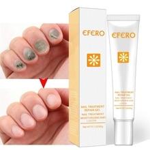 Лечение грибка для ногтей защита ноги ремонт ногтей EssenceAnti Toenail грибки ногтей питательный крем инструменты для ухода за ногтями