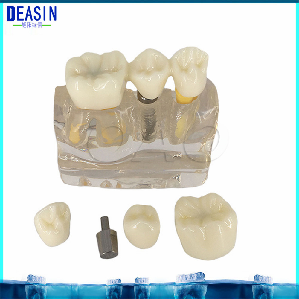 2018 DEASIN DENTOFORM MACRO IMPLANT TEETH MODEL CROWN BRIDGE DEMOSTRATATION TEETH TOOH TYPODONT dentoform macro implant crown bridge demostratation teeth tooh typodont teeth model