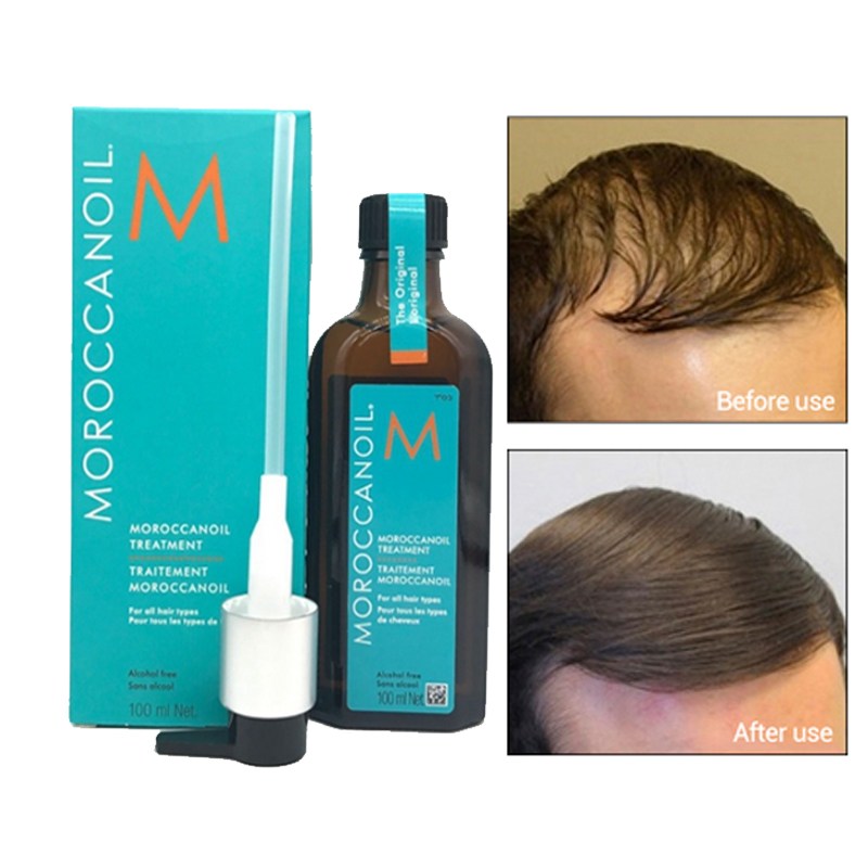 Morocco Hair Oil Treatment 100 ml Essential Oil Nourish Scalp Haircare with Blue Box for all Hair Types