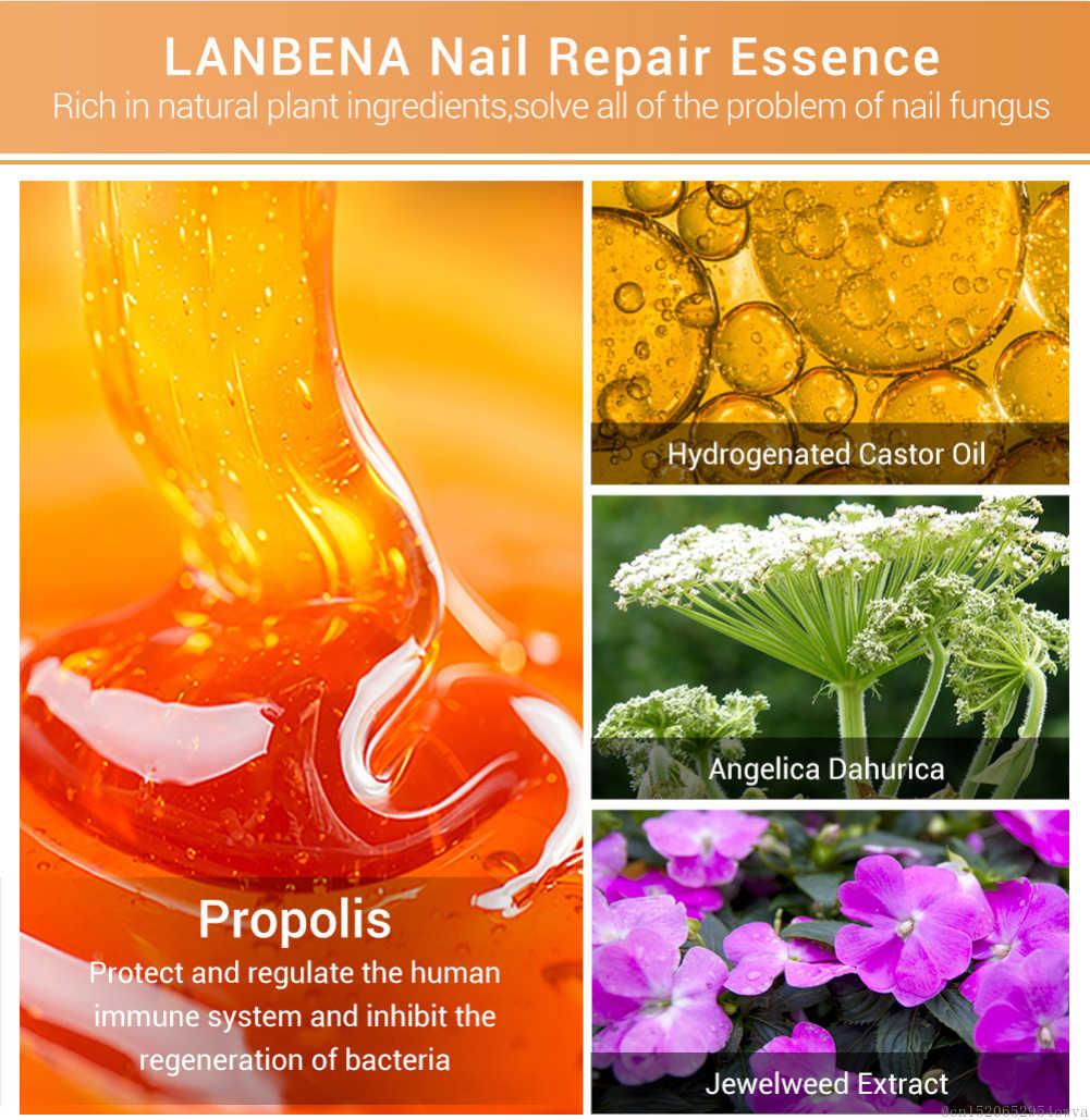 LANBENA trattamento liquido per la riparazione delle unghie con lima per unghie Anti rimuovere le unghie onicomicosi fungo punta nutriente illumina le unghie TSLM1