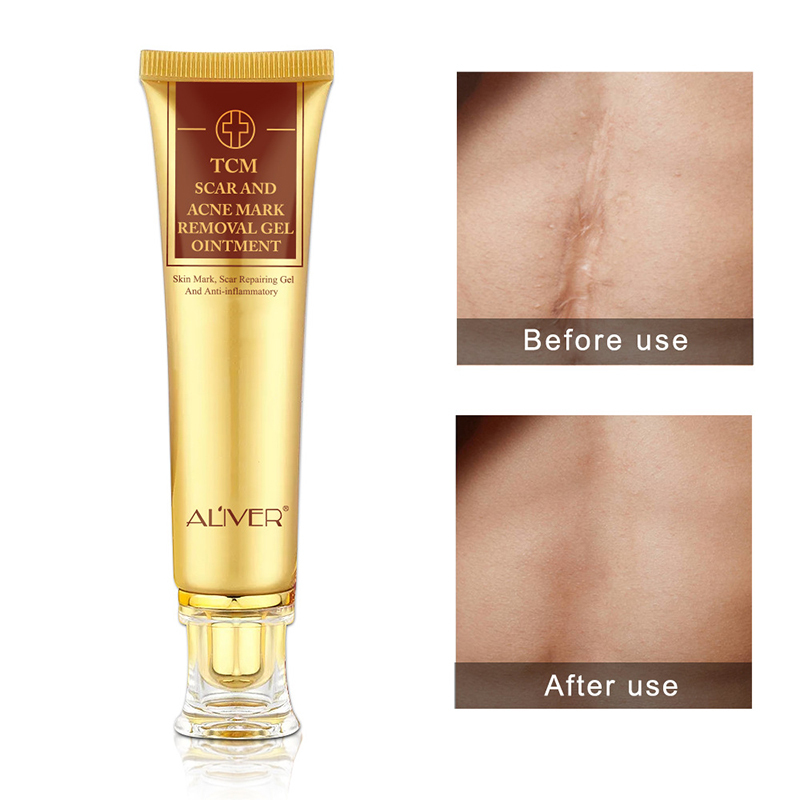 Aliver Scar Repair Gel Quickly Removes Various Keloid Mark Skin