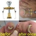 Encaixotado Ingrown Toe Nail Ferramenta de Correção Fixer Recuperar Pro Pé Cuidados Com as Unhas Manicure Clipper Pedicure Prego Corrector Joanete Ortopédicos