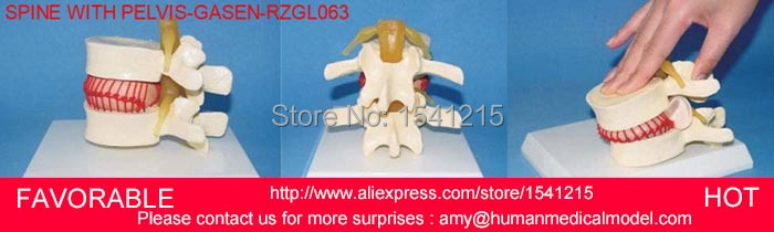 LUMBAR MODEL SPINAL NERVE MODEL CAUDAL EQUINA NERVE LUMBAR SPINE DISC MODEL SPINE ,LUMBAR DISC HERNIATION MODELGASEN-RZGL065 some nerve