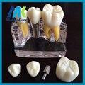 Manka Cuidado Dental dientes modelo modelo del diente dental dientes modelo de plantación de descomposición explotó extraíble modelo de enseñanza dental