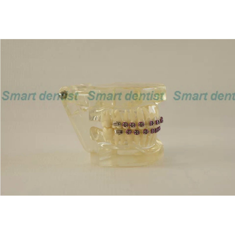 2016  Dental Orthodontics Typodont Teeth Model Half Metal Half Ceramic Brace Typodont with Arch Wire 2016 dental orthodontics typodont teeth model half metal half ceramic brace typodont with arch wire