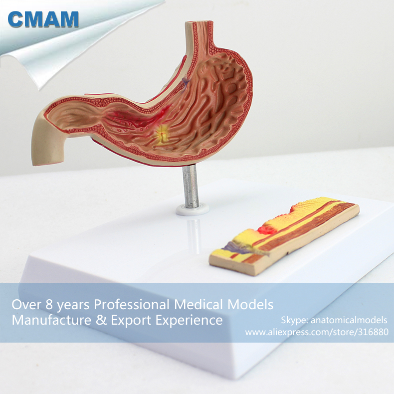 12534 CMAM-STOMACH01 Half Size Human Diseased Stomach Medical Science Anatomical Stomach Model 12461 cmam anatomy23 breast cancer cross section training manikin model medical science educational teaching anatomical models