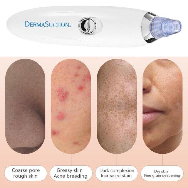 Aspiradora de punto negro succión queratina eliminación cicatriz acné poro Peeling cara limpieza Facial cuidado de la piel máquina de belleza