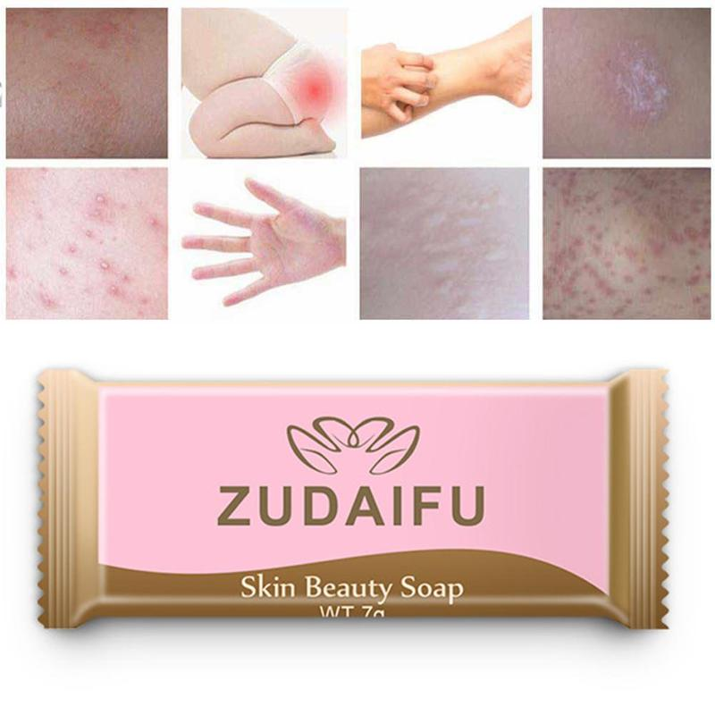 Mini 3pcs Zudaifu Sulfur Soap Skin Conditions Acne Psoriasis Seborrhea Eczema Anti Fungus Bath Whitening Soap Shampoo Soap 7g/pc