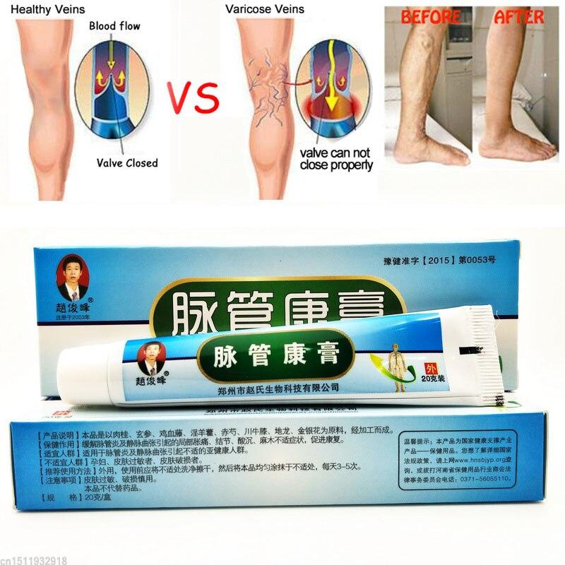 imágenes de vasculitis en las piernas