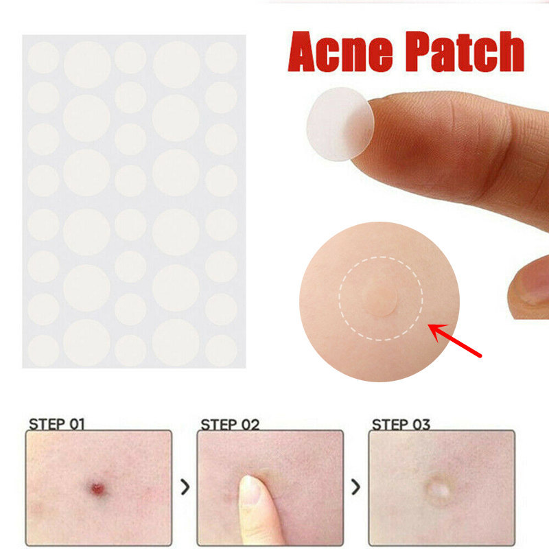 36pcs Patch Skin Care Face  Pimple Remover Sticker Patch Facial  Cover Patches Skin Tag