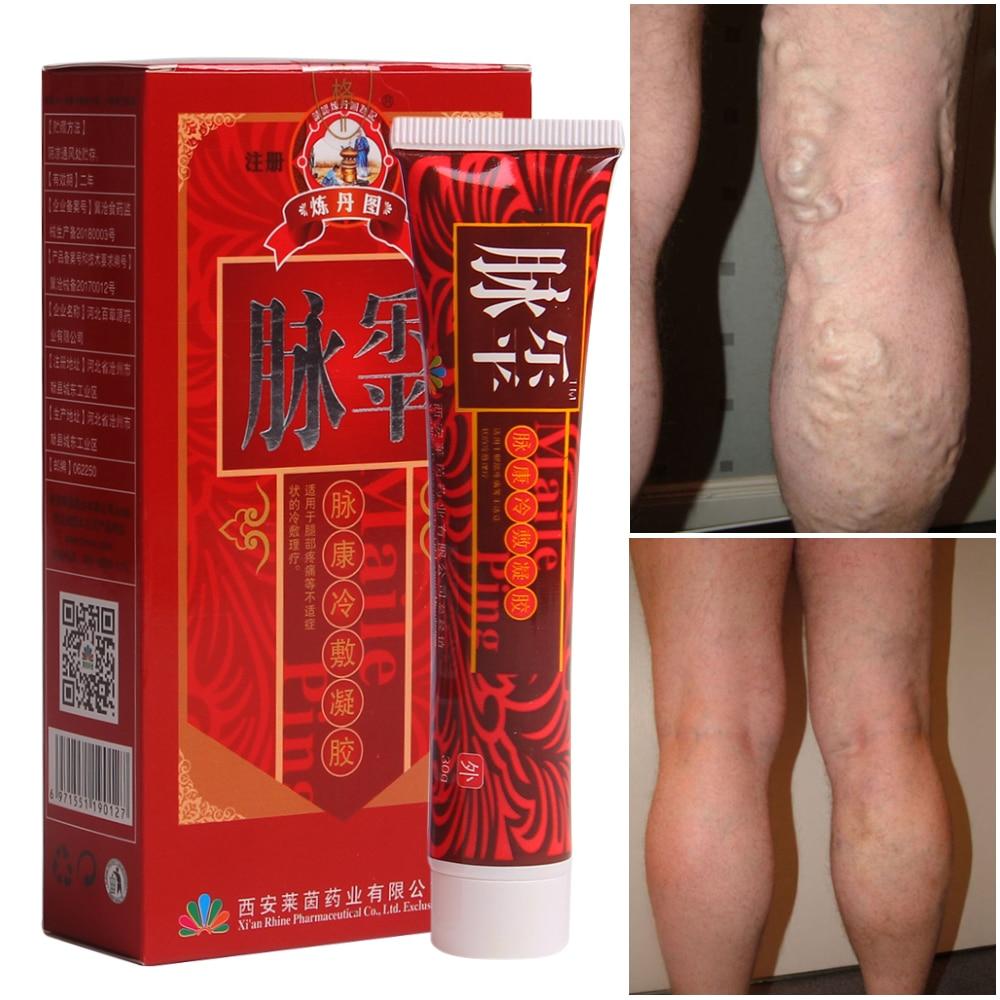 e89f6746090 Varicose Vein Cream for Cure Professional Vasculitis Phlebitis Spider Pain  Varicosity Angiitis Ointment Limb fatigue Health Care