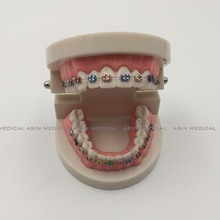 2016 Orthodontics Model for Dentist Dental 1/2 Standard Dentition with Full Metal Brackets Teeth Model