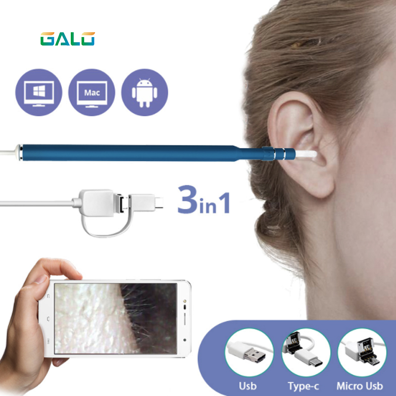 1.5m 3 In 1 USB OTG Visual Ear Cleaning Endoscope Spoon Functional Diagnostic Tool Ear Cleaner Android 720P Camera Ear Pick