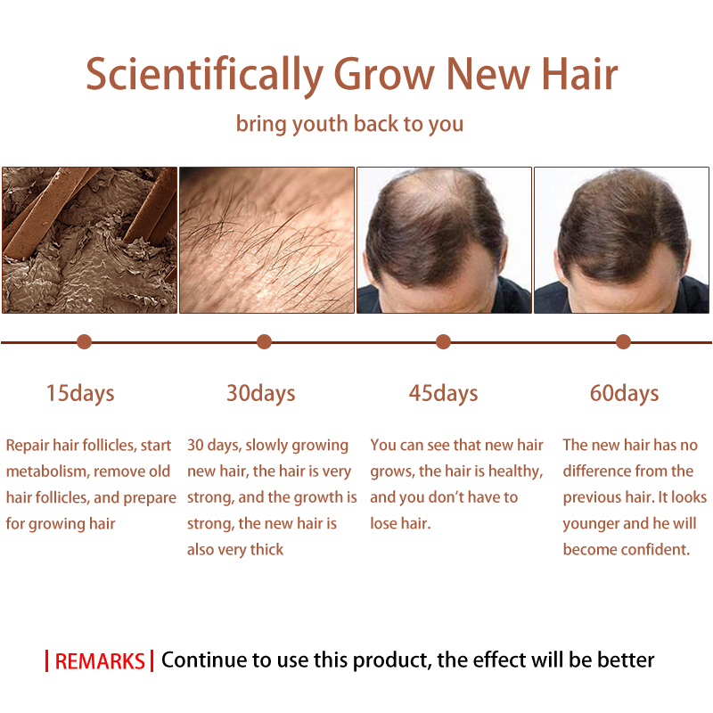 New Arrival Andrea Hair Growth Products Ginger Oil Hair Growth Faster Grow Hair Ginger Shampoo Stop Hair Loss Treatment 3
