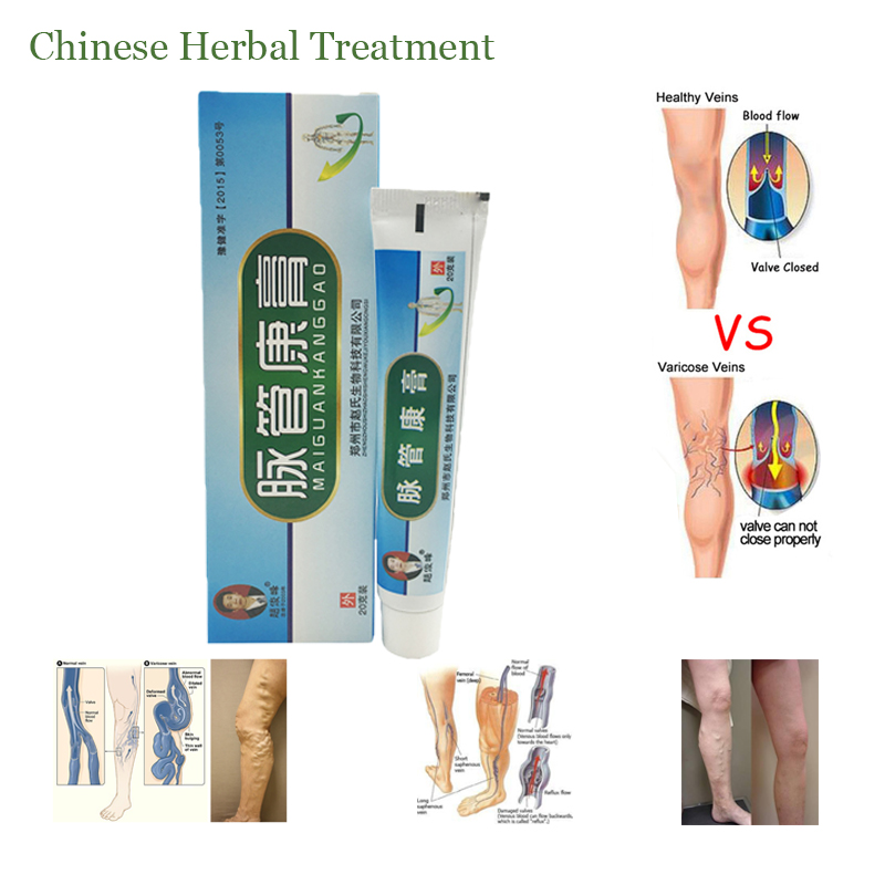 1boxes Chinese natural herbal medicine for treating varicose vascular inflammation massage cream cure vein ointment
