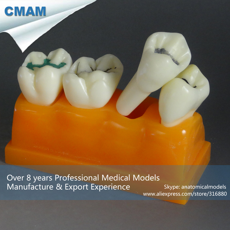 CMAM-TOOTH17 Four Times The Pit and Fissure Model Dental Education cmam dental16 child dental education 3 6 age graghically developing model