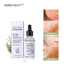 HERES B2UTY 2019  Tea Tree seed moisturizing essence Facial essence Hydrating moisture Elite fluid soft&deep nourishing skin gel