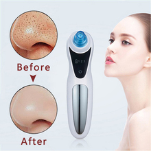 skin care pore vacuum cleaner electric extractor nose blackhead remover machine face products cleaning tools