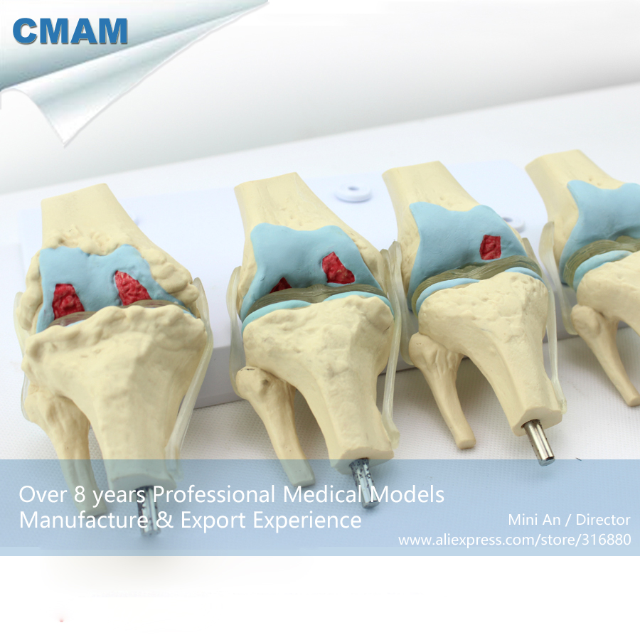 CMAM-JOINT12 Human 4-Stage Osteoarthritis Knee Set Joint Study Model,  Medical Science Educational Teaching Anatomical Models lady gaga