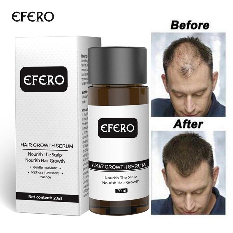 Hair Growth Essence Hair Loss Dense Hair Fast Hair Growth Oil Grow Restoration Growing Serum 1