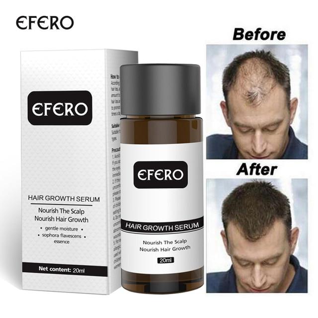 Hair growth essence hair loss dens