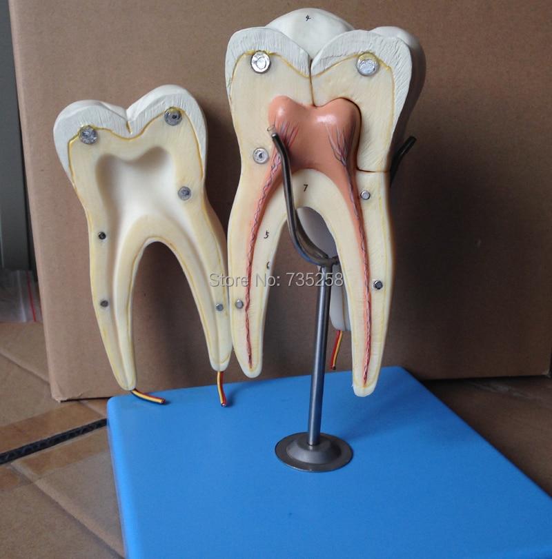цена на Three Model of Mandibular Molar Root,Teeth Model,Molar Model,Mandibular Molar Model