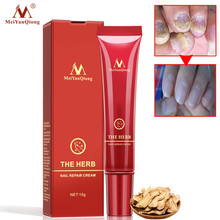 MeiYanQiong Herbal Nail Treatment Onychomycosis Paronychia Anti Fungal Infection Toe Fungus 15ml