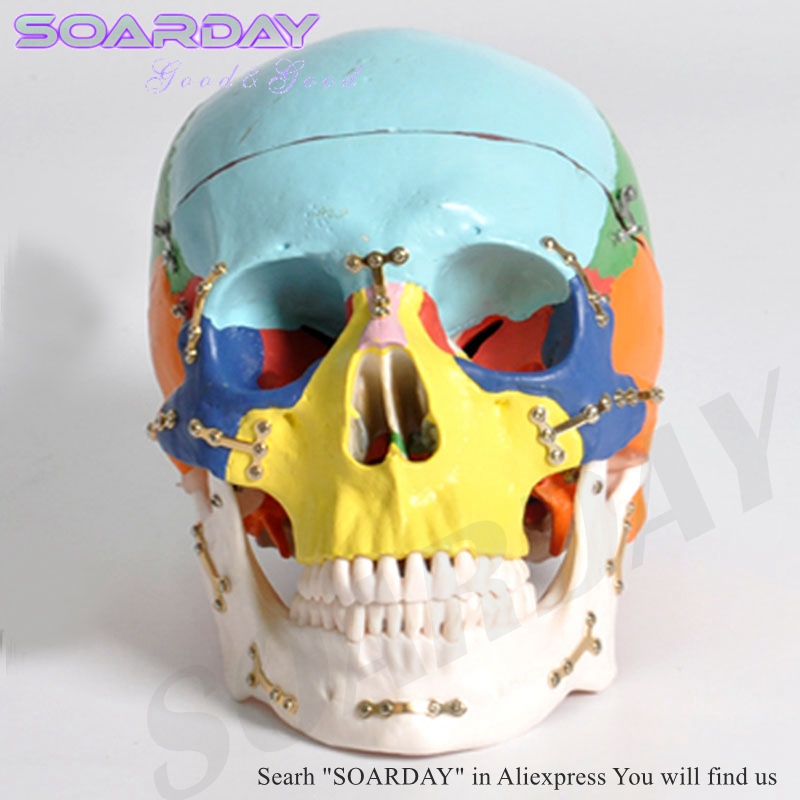 SOARDAY Skull model with clolour Skull fractures fixed model hospital clinic doctor-patient communication simulation modelSOARDAY Skull model with clolour Skull fractures fixed model hospital clinic doctor-patient communication simulation model