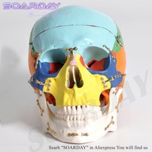 SOARDAY Skull model with clolour Skull fractures fixed model hospital clinic doctor-patient communication simulation model
