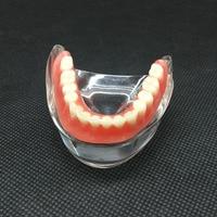 Dental Overdenture Inferior Teeth Model With 2 Implant Demo Teeth Study Model 6002