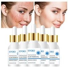 efero Whitening Face Cream Skin Repair Serum Acne Spots Treatment Blackhead Shrink Pores 15ml