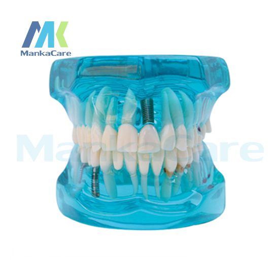 Manka Care Restoration with Implant Oral Model Teeth Tooth Model