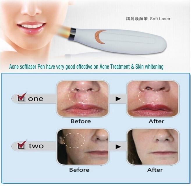 2 Pcs Lot Gaalas 635 670nm Laser Facial Acne Herpes