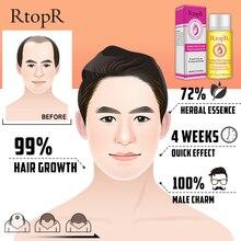 RtopR Herbal Hair Growth Anti Hair Loss Liquid
