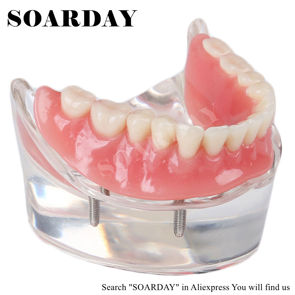 SOARDAY Dental Mandibular Removable Overdenture Model with 2 implants Teaching Study Teeth Model