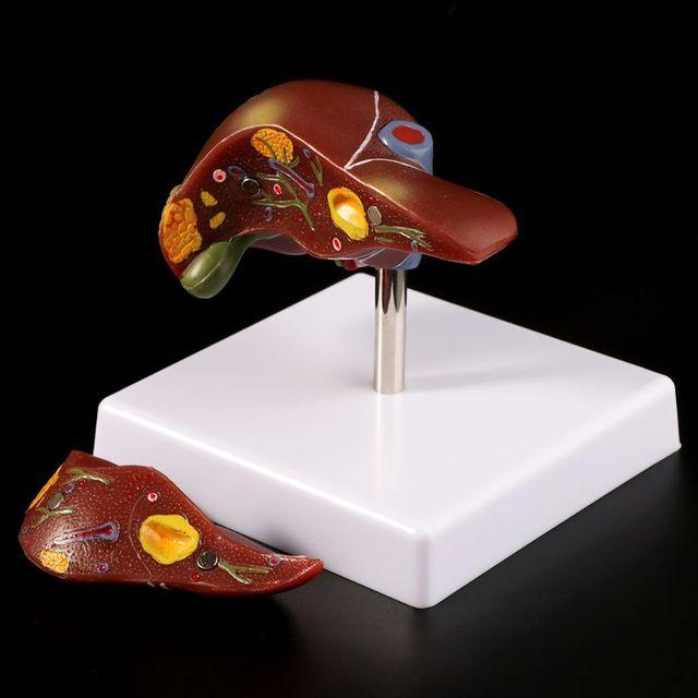 Fegato umano Patologico Modello Anatomico Modello Anatomico di Scuola di Insegnamento Medico Strumento di Visualizzazione di Apparecchiature di Laboratorio