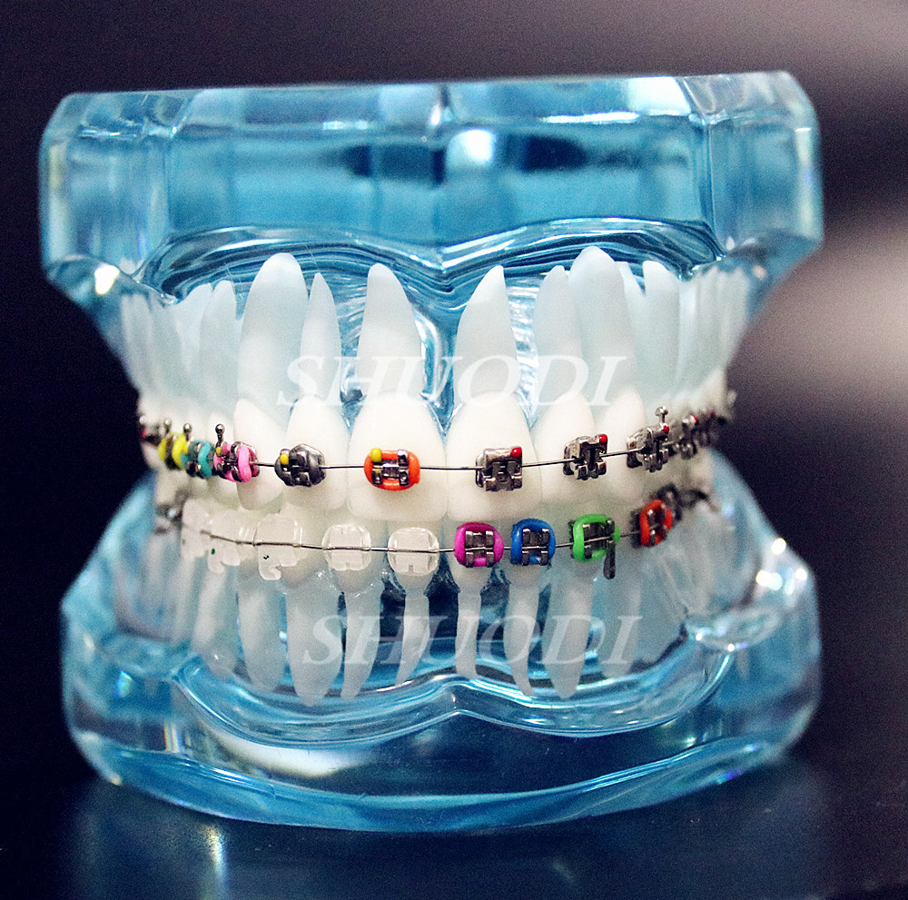 Dental Orthodontic Teeth Tooth Model with Ceramic and Metal Brackets for Patient Communication Dental Study Model