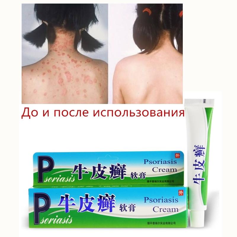 1/4/10PC zudaifu Psoriasis Cream Body Massage Patches Wholesale zudaifu Chinese Ointment wholesale 1 4 2v3a
