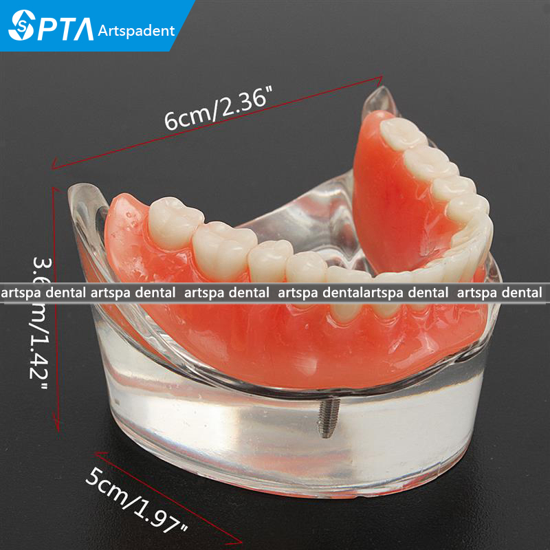 generic implants with removable inferior overdenture Teeth Model dental overdenture inferior with 2 implants demo model study model