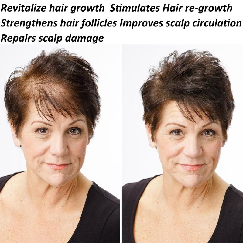 Saç üçün Şampun Saçların böyüməsinə qarşı təbii bitki - Saç qayğı və üslubu - Fotoqrafiya 2